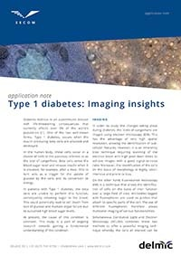 type 1 diabetes imaging insight